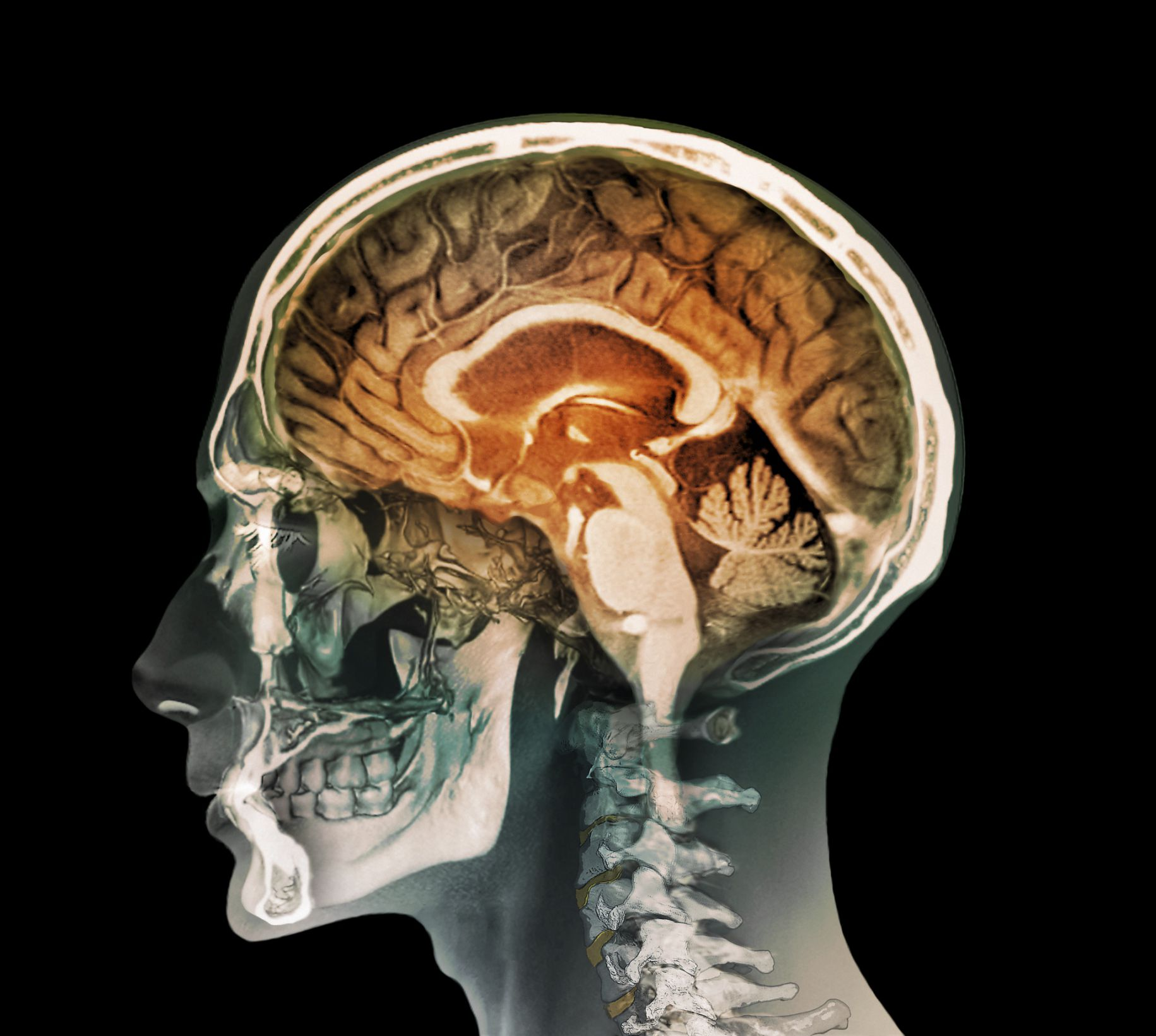 Злоупотребление алкоголем и дефицит тиамина повреждают мозг