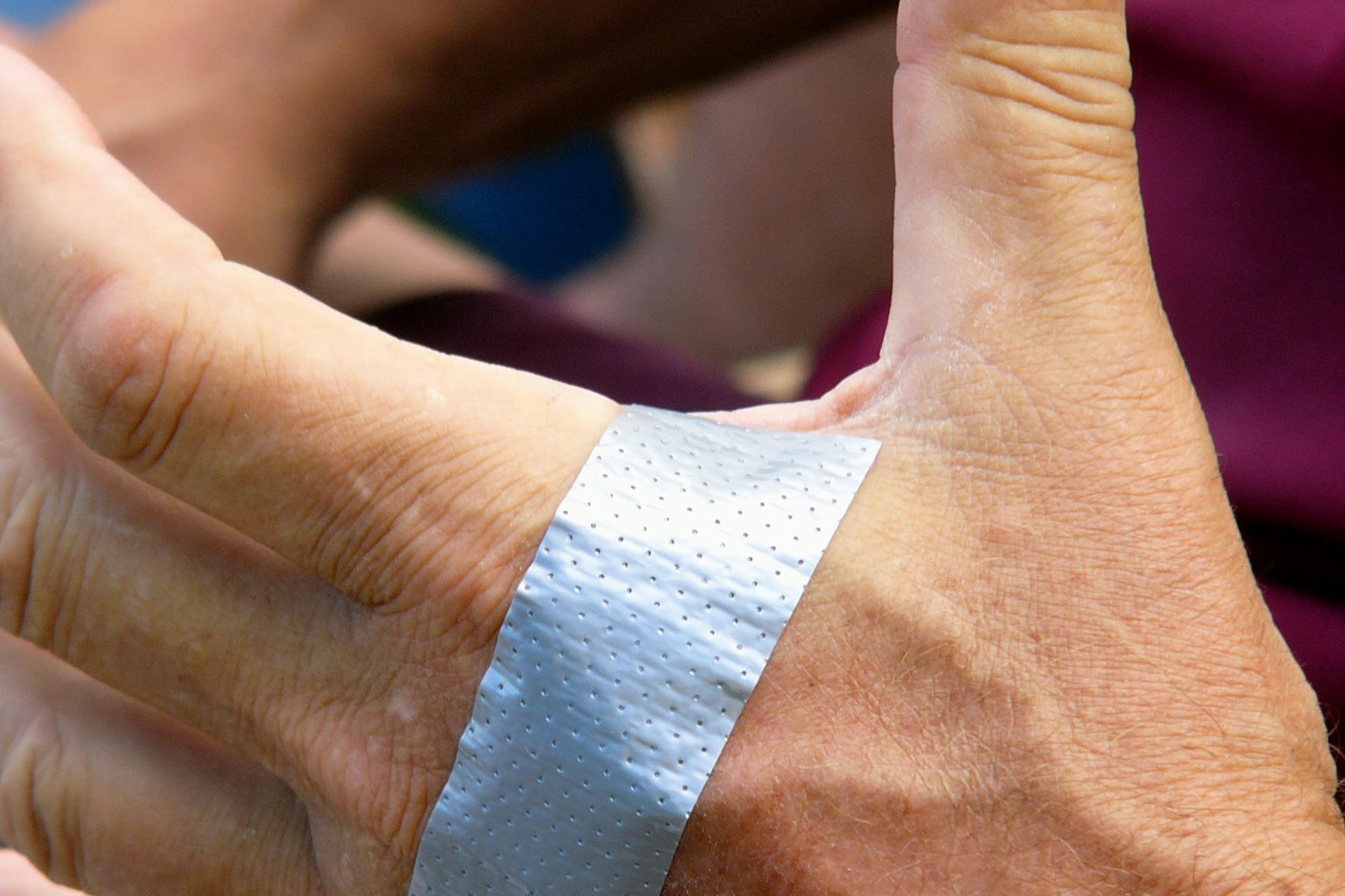 Как использовать клейкую ленту для лечения бородавок