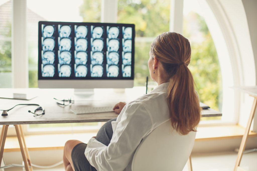 МРТ изображения показывают, как алкоголь может физически повредить ваш мозг