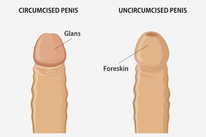 Подростковое Обрезание
